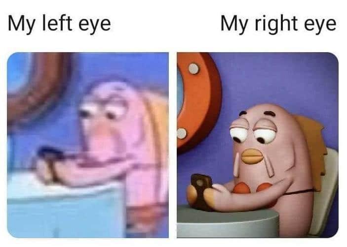 Spongebob, This Is Patrick, Keratoconus, Barnard Castle Spongebob Memes Spongebob, This Is Patrick, Keratoconus, Barnard Castle text: My left eye My right eye