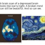 Wholesome Memes Wholesome memes, Starry Night text: A brain scan of a depressed brain looks like starry night. A broken mind can still be beautiful. And so can we. souNOATlON MEDICAL EOL